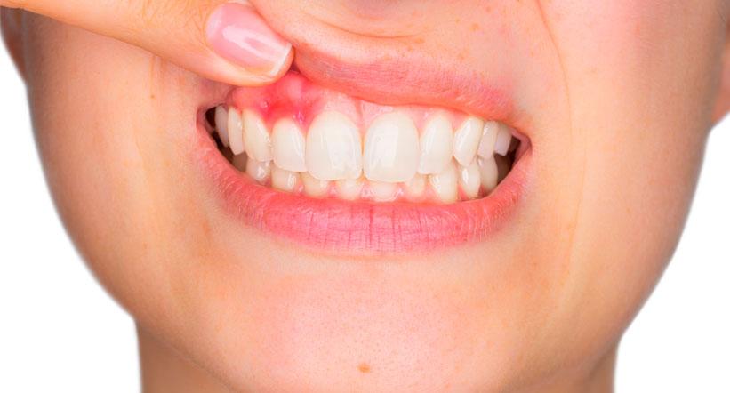 Cura e prevenzione parodontite