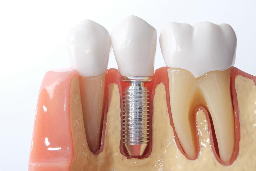 domande frequenti implantologia